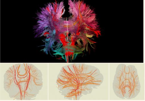 Two-dimensional brain - Researchers at Brown University have created a computer program to advance analysis of the neural connections in the human brain. The programs special features include a linked view for users to view both the 3-D image (top) and 2-D closeups of the neural bundles.